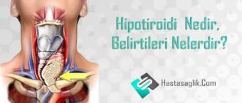 Hipotiroidi Nedir, Belirtileri Nelerdir?