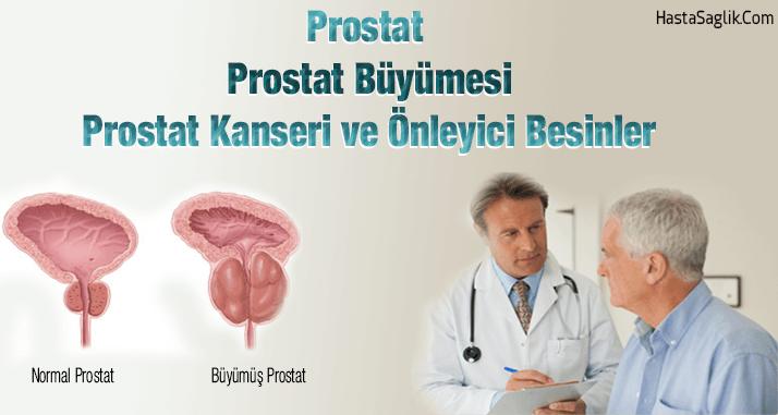 Prostat ve Prostat Kanseri