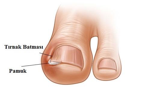 Tırnak Batması Nedenleri ve Tedavisi